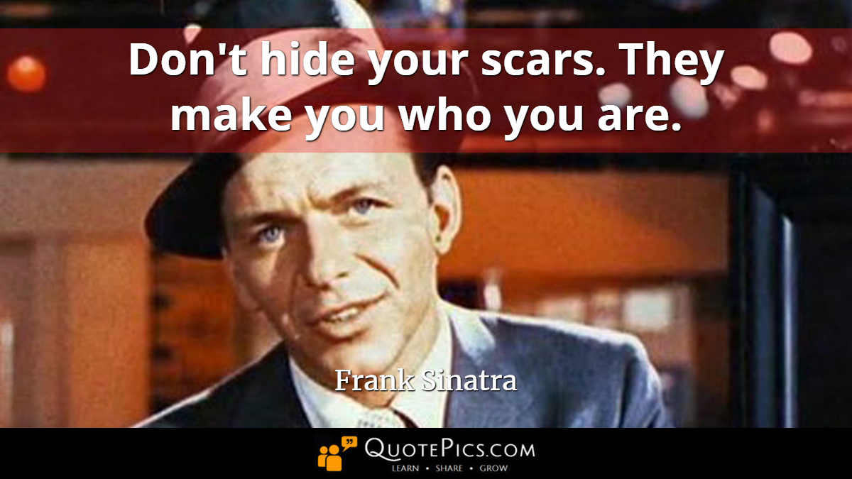 """Don't hide your scars. They make you who you are."" —Frank Sinatra [1200×675]"