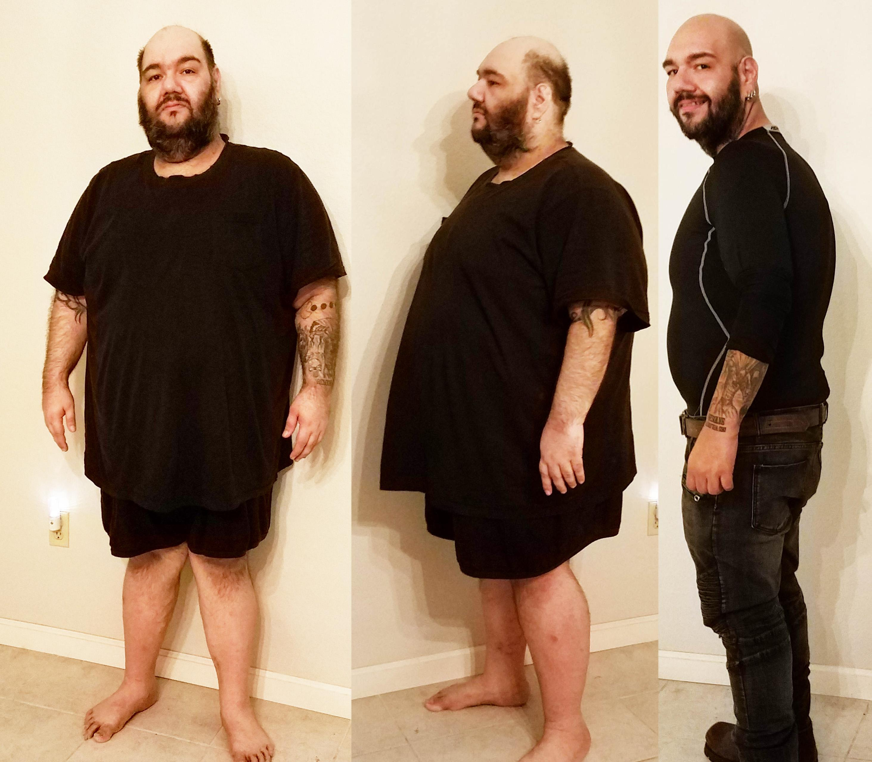 [Image] u/VegasLowRoller lost 234lbs in 1 year