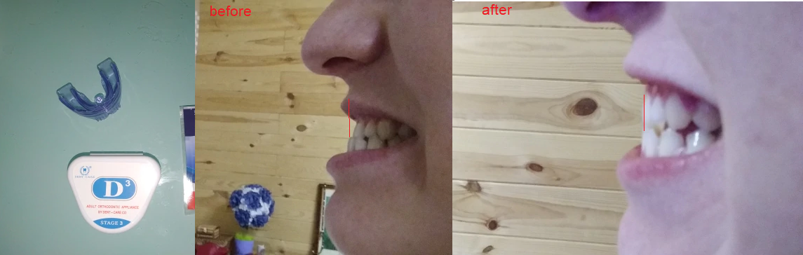 [Image] Everything is possible!!! I didn't have money for real braces so I got this thing and it has done wonders in 7 weeks .. My lower teeth should go more behind the upper in couple of months