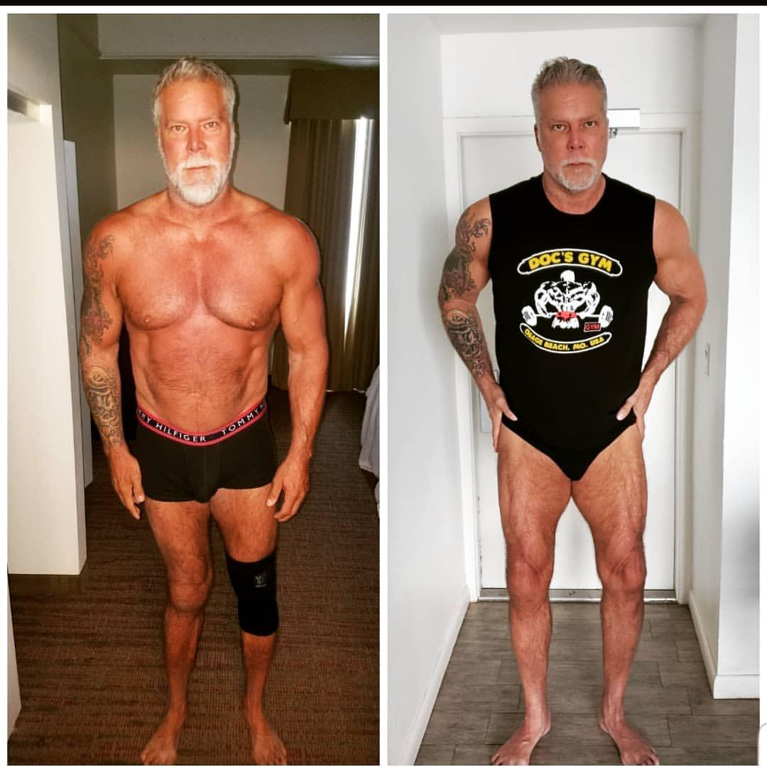 Last night 60yo pro wrestler Kevin Nash shared these before-and-after photos. He had knee replacement surgery two years ago and has been rehabbing and training ever since. [Image]